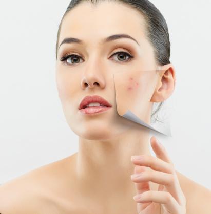 Eliminate Acne Scars