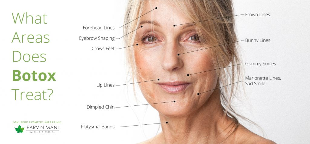 what areas does botox treat?