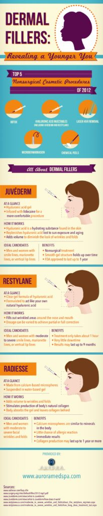 SD Cosmetic - Dermal Filler Infographic