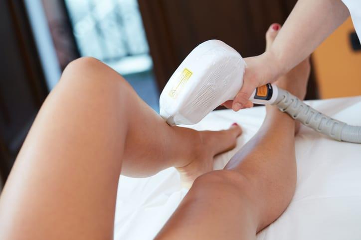 laser-hair-removal-leg