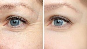 wrinkle-eyes