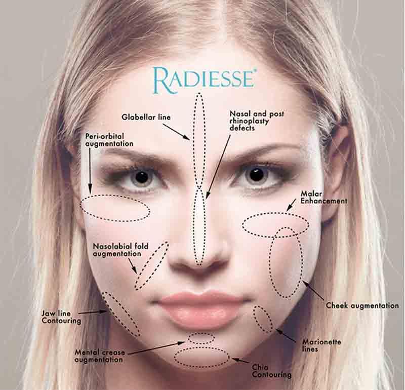 radiesse-areas